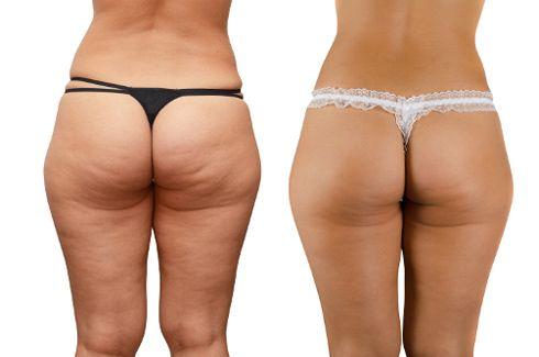 Целюліт до і після схуднення (16 фото)