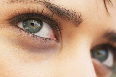 Як позбутися від синців під очима в домашніх умовах