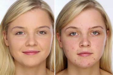 Шкірний кліщ на обличчі