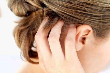 Роздратування шкіри голови: причини і лікування